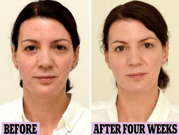Woman Drinks Gallon Of Water Every Day For Four Weeks And The Final Picture Results Are Amazing