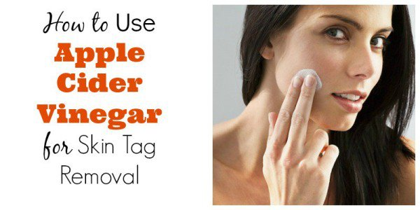 9 Must Know Uses Of Apple Cider Vinegar That Will Change Your Life