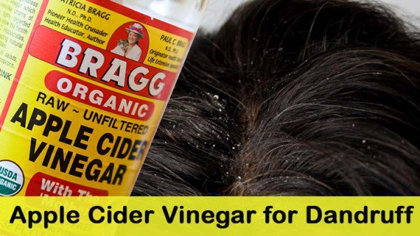 9 Of The Best And Most Useful Home DIY Hacks To Get Rid Of Dandruff And Itchy Scalp