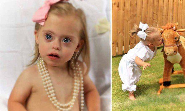 This 2 year old Down Syndrome Girl Got A Modeling Contracts Due To Her Charming Smile