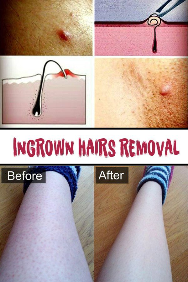 11 Brilliant, Easy, Beauty Care Tips and Hacks To Save Money And Time But Still Look Perfect