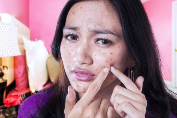 10 Best Recommended Advices And Tips For Covering Acne Scars Easier