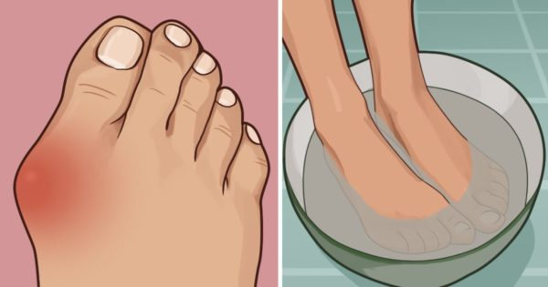 9 Beauty Tips, That Every Woman With Problematic Skin Should Know