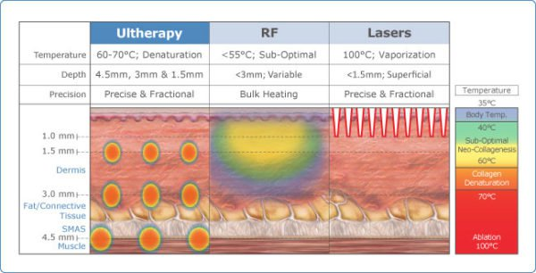 Tightening Your Skin with Ultrasound Therapy Versus Lasers