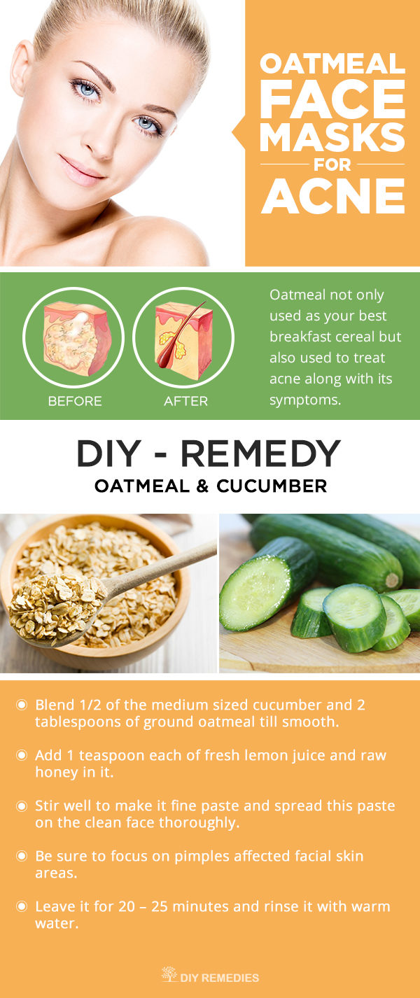 The Best Cucumber Remedies To Get Rid Of Your Beauty Problems