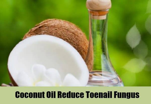 Useful Homemade Remedies For Toe Nail Fungi