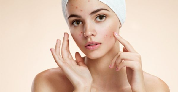 Effective Homemade Remedies To Deal With Blackheads