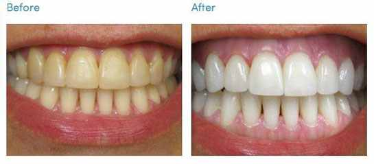 Effective Homemade Remedies For Teeth Whitening That You Should Try Now