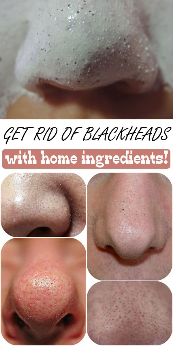 Awesome Homemade Blackheads Removers That Are Easy To Make