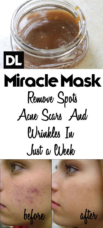 Homemade Creams That Will Help You Remove Scars On Your Face
