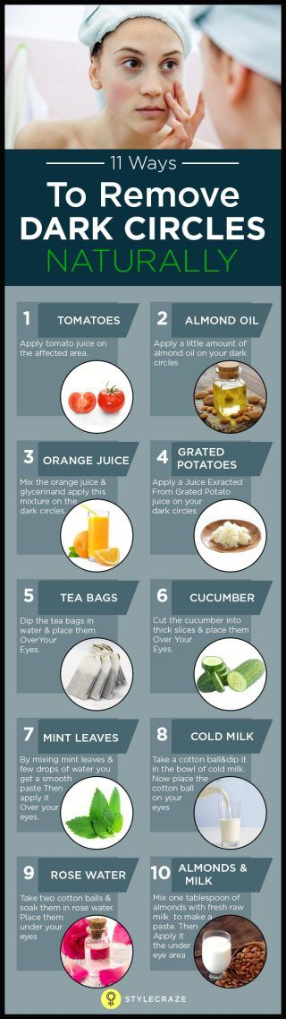 Natural Remedies That Will Help You Remove The Dark Circles Under Your Eyes
