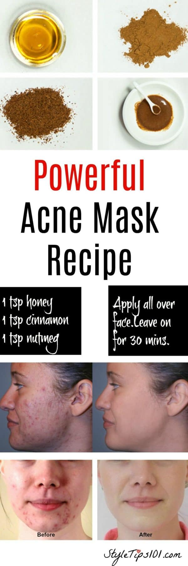 Amazing Homemade Acne Remedies That You Have To Try Now