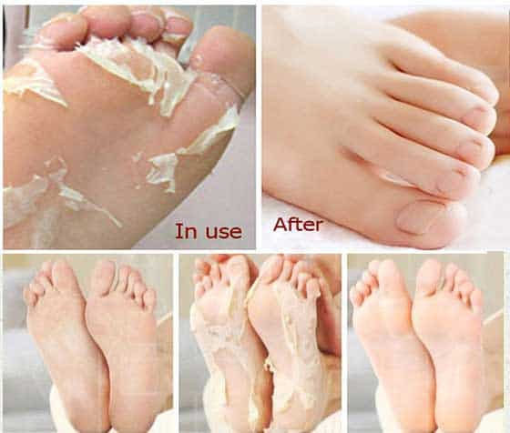 Homemade Remedies That Will Get Your Cracked Heels Ready For Summer