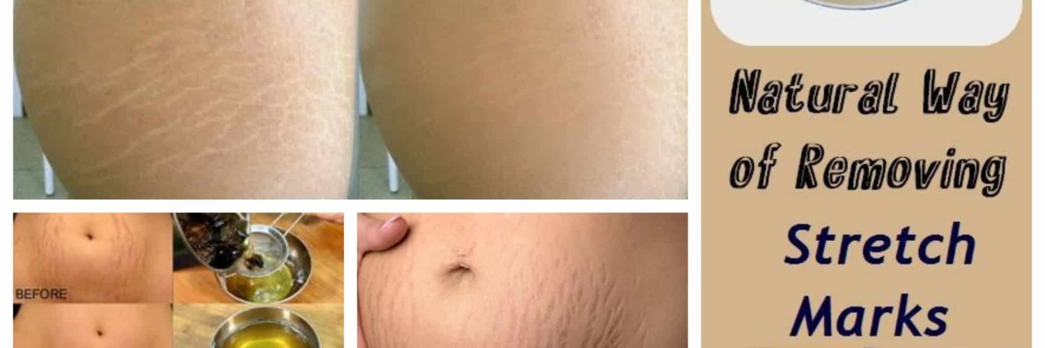 Natural Homemade Stretch Marks Remedies To Use After Pregnancy