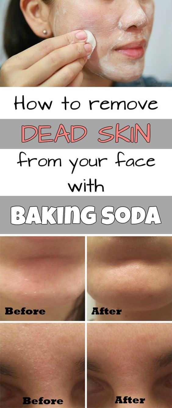 How To Naturally Solve Beauty Problems Using Homemade Recipes With Baking Soda