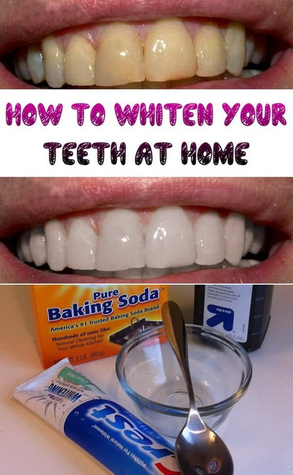 The Best Homemade Remedies To Whiten Your Teeth Naturally