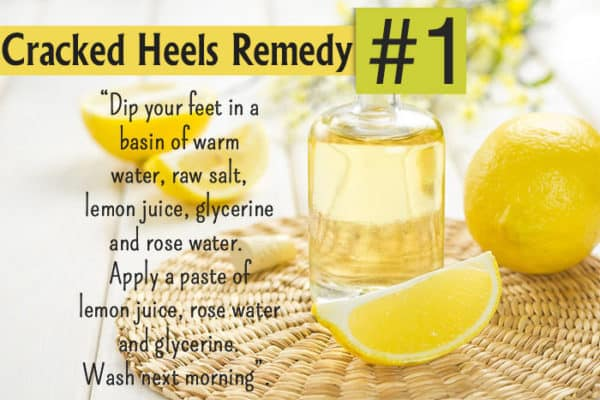 Homemade Recipes To Get Rid Of Cracked Leg Feet