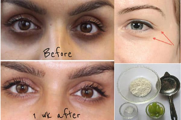 Homemade Recipes To Get Rid Of Dark Circles Around The Eyes