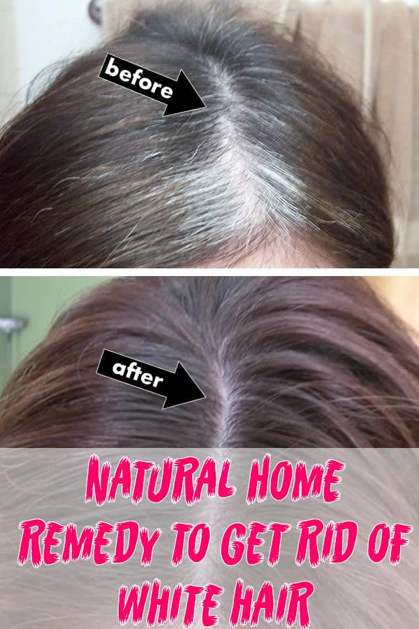 Natural Homemade Remedies To Get Rid Of White Hair