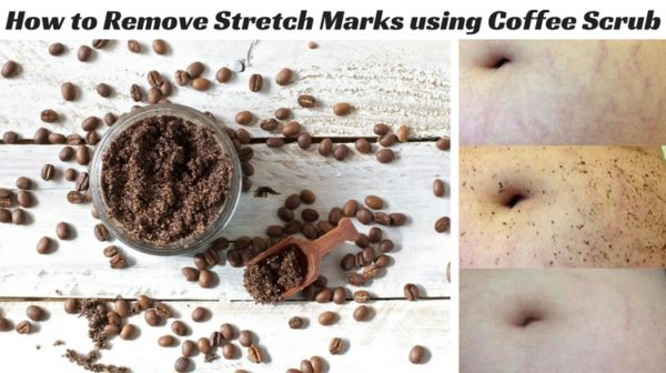 Natural Homemade Mask To Get Rid Of The Stretch This Summer