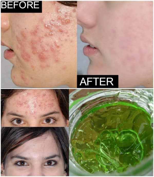 Effective Homemade Aloe Vera Acne Remedies That Will Do Wonders For Your Skin