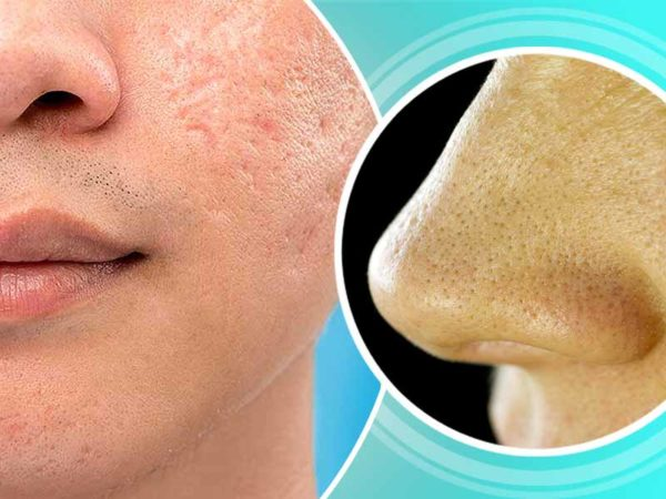 Natural Homemade Open Pores Remedies That Are Very Effective