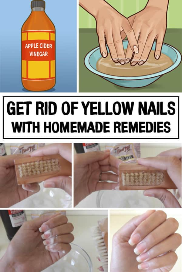 Awesome Homemade Remedies For Yellow Nails That You Should Try