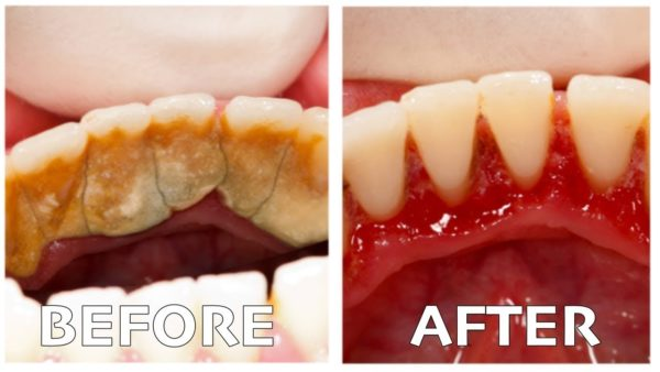 Dental Plaque Homemade Remedies That Will Whiten Your Teeth