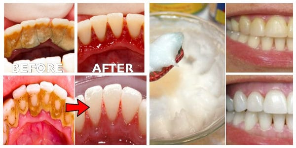 Dental Plaque Homemade Remedies That