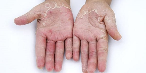 Natural Remedies For Peeling Hands That Are Really Effective