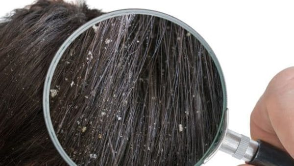 How To Get Rid Of Dandruff With These Natural Remedies