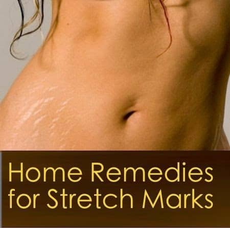 Natural Stretch Marks Remedies That Will Work Miracles On Your Skin