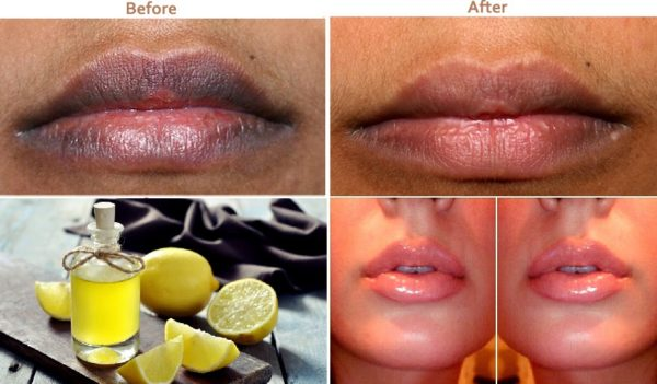 Helpful Homemade Citrus Fruits Remedies That Will Amaze You