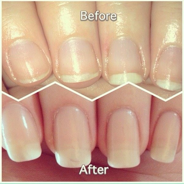 Natural Homemade Nails Serums That Will Solve All of Your Nails Troubles