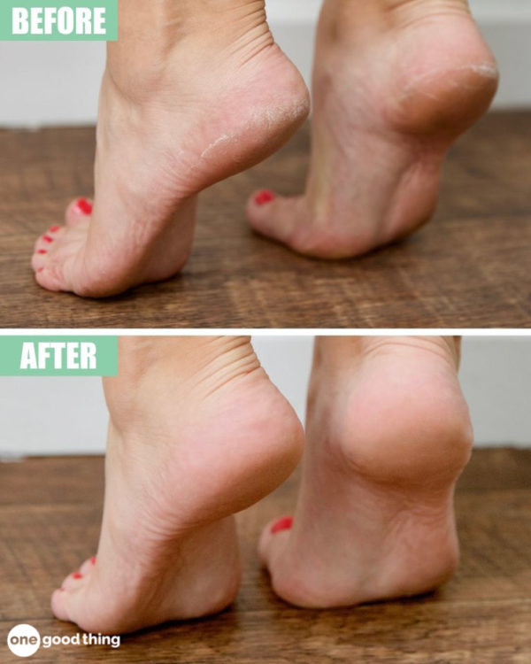 The Best Homemade Foot Treatments That Will Make Your Heels Soft