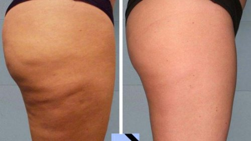 Homemade Anti Cellulite Treatments That  Are Really Effective