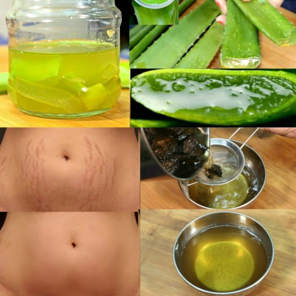 Homemade Stretchmarks Remedies That Are Really Effective And Easy To Make