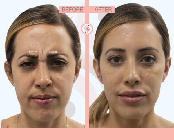Why Choose Juvederm?