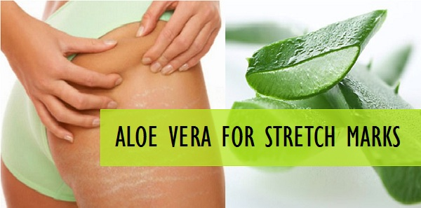 Homemade Aloe Vera Remedies That You Are Going to Love