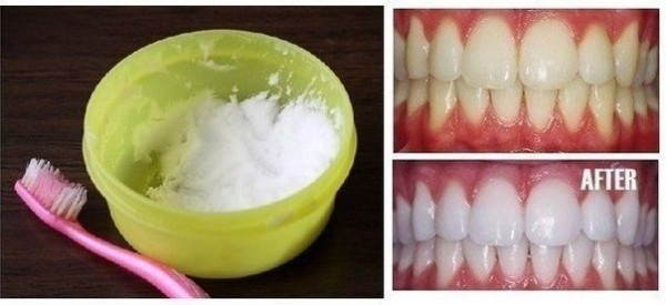 Revolutionary Teeth Whitening Remedies That Are Amazing For Your Yellow Teeth