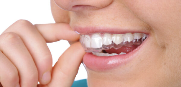 Tips for Picking the Best Invisible Braces
