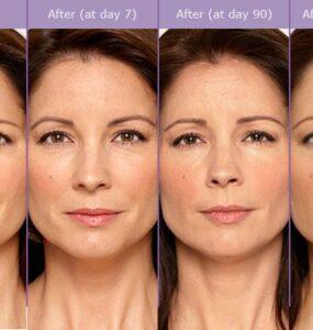 BOTOX® Cosmetic Pictures | Botox, Botox cosmetic, Botox injections